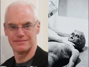 Alien-Autopsy-and-Anthony-Peake